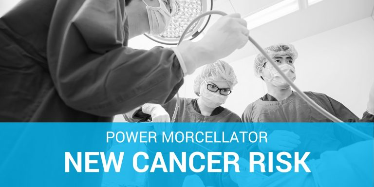 Power Morcellator Surgery Spreading Cancer