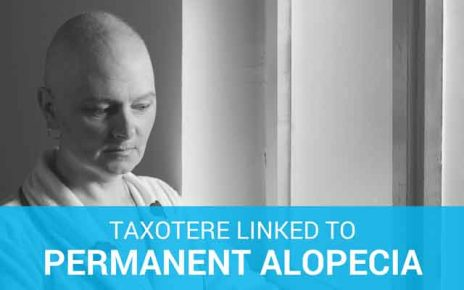 taxotere hair loss women learn link permanent alopecia