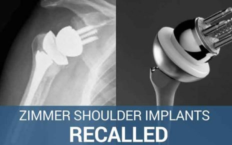 Zimmer Shoulder Implants FDA fast tracked after recall