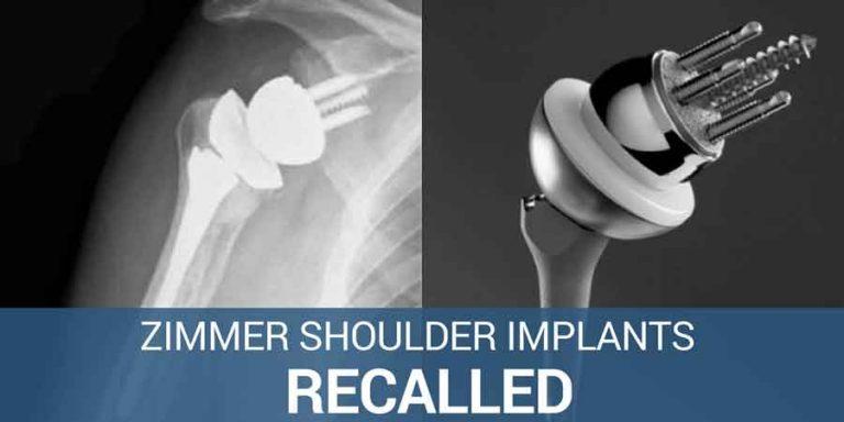 Zimmer Shoulder Implants FDA fast tracked after recall