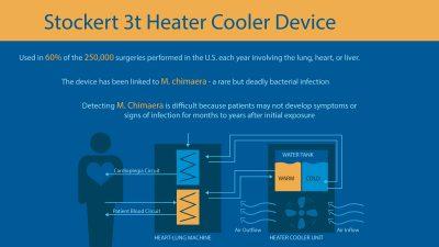 Stockert 3t Heater Cooler Device M. Chimaera Injury Infographic
