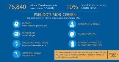 Mirena Adverse Events Pseudotumor Cerebri Infographic