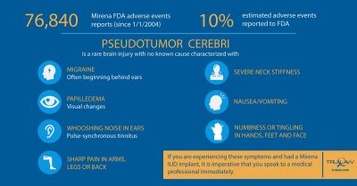 Mirena Adverse Events Pseudotumor Cerebri Infographic